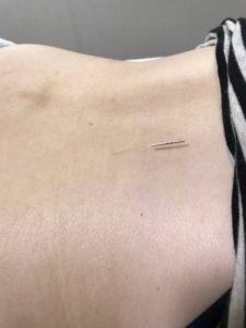 不妊治療の針治療